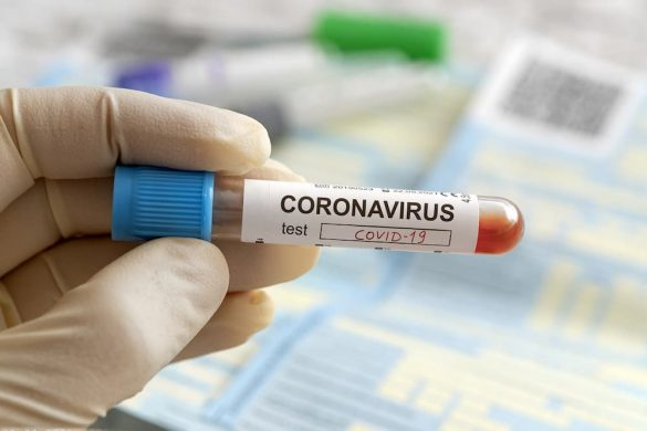 Iniciativa privada combater coronavírus